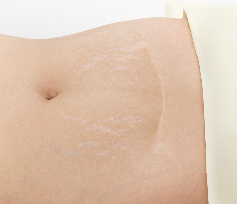 scar-and-stretch-mark-removal