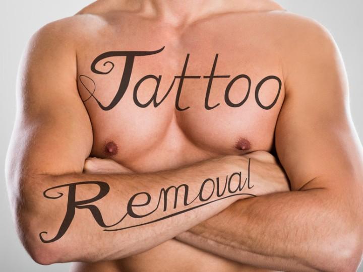 DermaPen-TattOff-Tattoo-Removal
